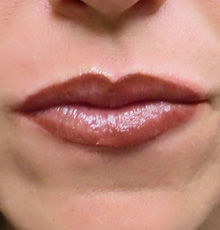 after_lips640_small