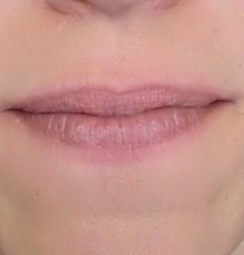 before_lips640_small