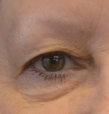beforebrows162_small